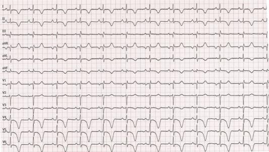 miocarditis aguda ecg