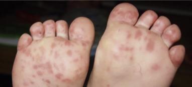 petequias en los pies y tobillos