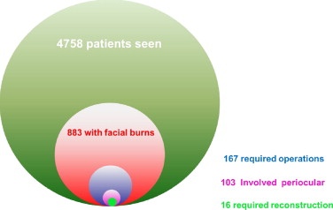 Periorbital burns – A 6 year review of management and outcome