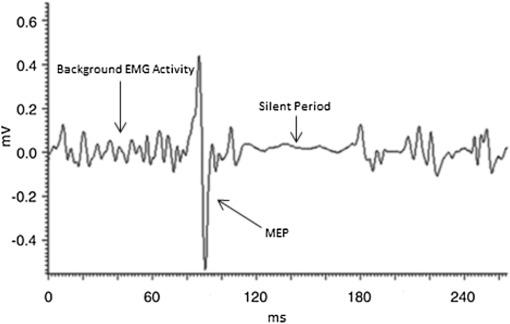 Case series investigating the cortical silent period after