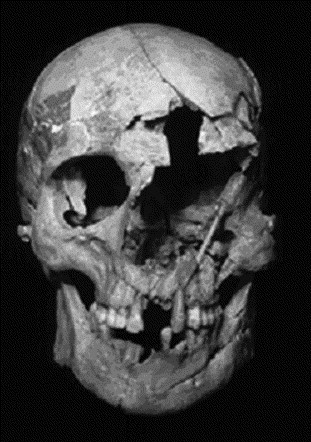 Image result for mace wound in skull