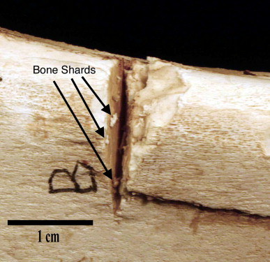 Identifying sword marks on bone: criteria for distinguishing