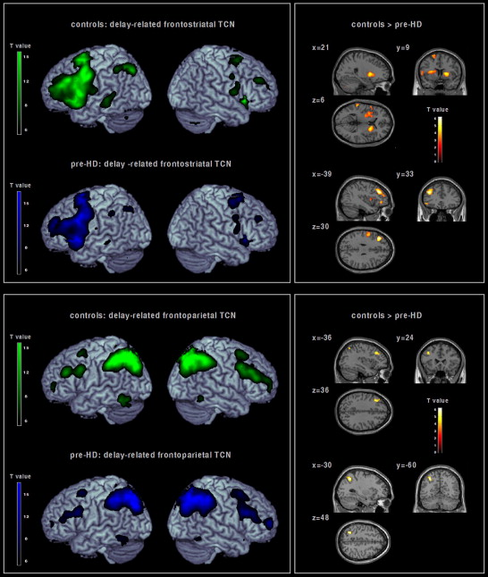 Magnetic Resonance Imaging Of Huntington S Disease Preparing For Clinical Trials Sciencedirect