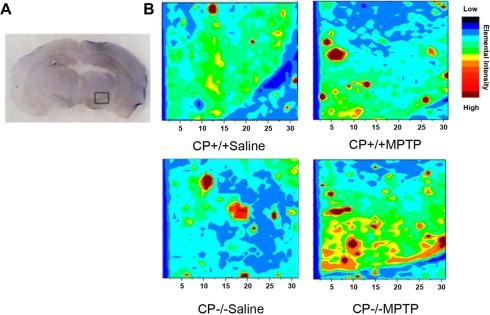 Brain iron accumulation exacerbates the pathogenesis of MPTP-induced