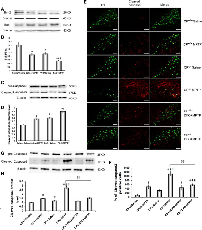 Brain iron accumulation exacerbates the pathogenesis of MPTP-induced