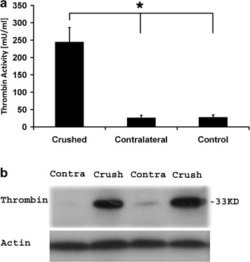 A novel histochemical method for the visualization of thrombin