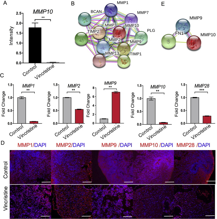 Neurotoxicity Predicted By Organoids >> Vincristine Impairs Microtubules And Causes Neurotoxicity In