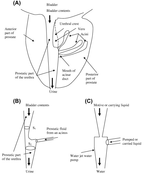 The Prostatic Urethra As A Venturi Effect Urine Jet Pump To Drain