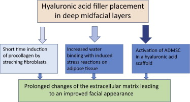 Midfacial rejuvenation by hyaluronic acid fillers and