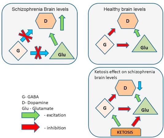 Ketogenic diet for schizophrenia: Nutritional approach to
