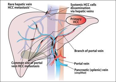 Cancer of hepatic vein