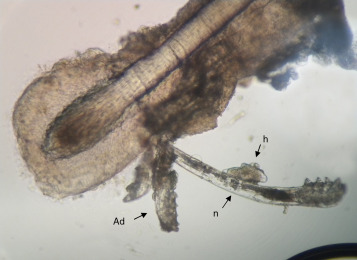 ciclo demodex folliculorum