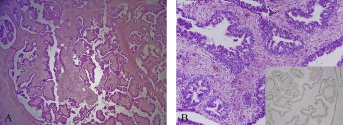 intraductal papilloma and fibroadenoma