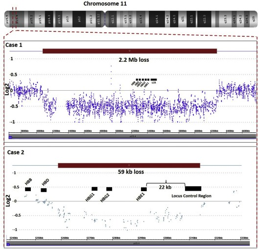 Clinical and molecular characterization of novel deletions