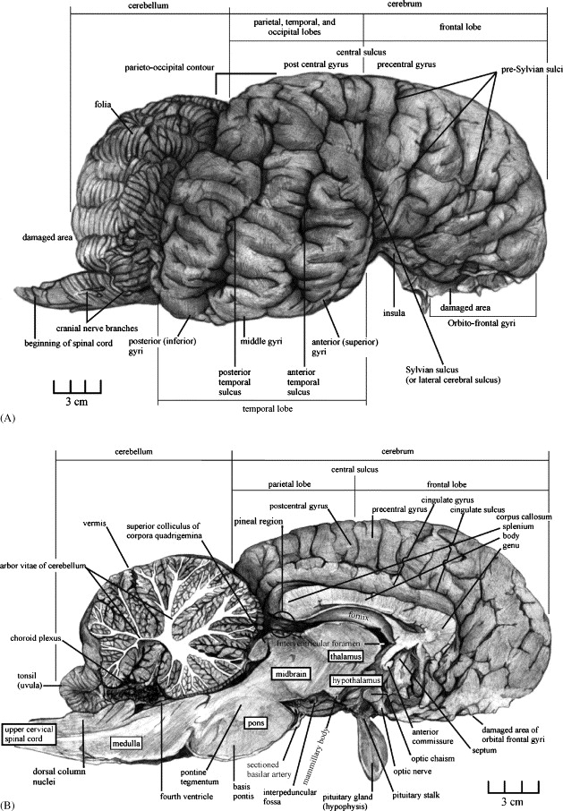 Elephant brain: Part I: Gross morphology, functions, comparative ...