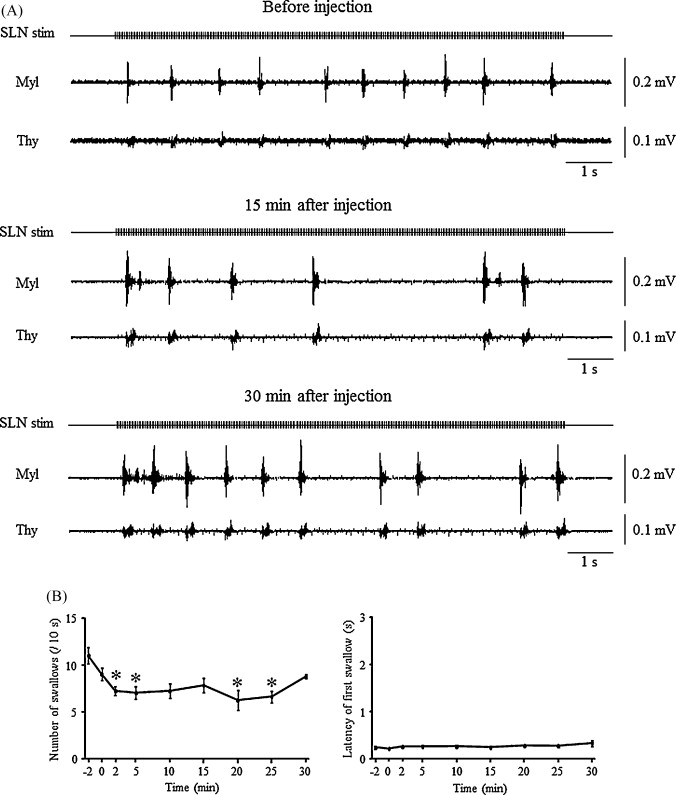 Suppression of the swallowing reflex by stimulation of the red ...