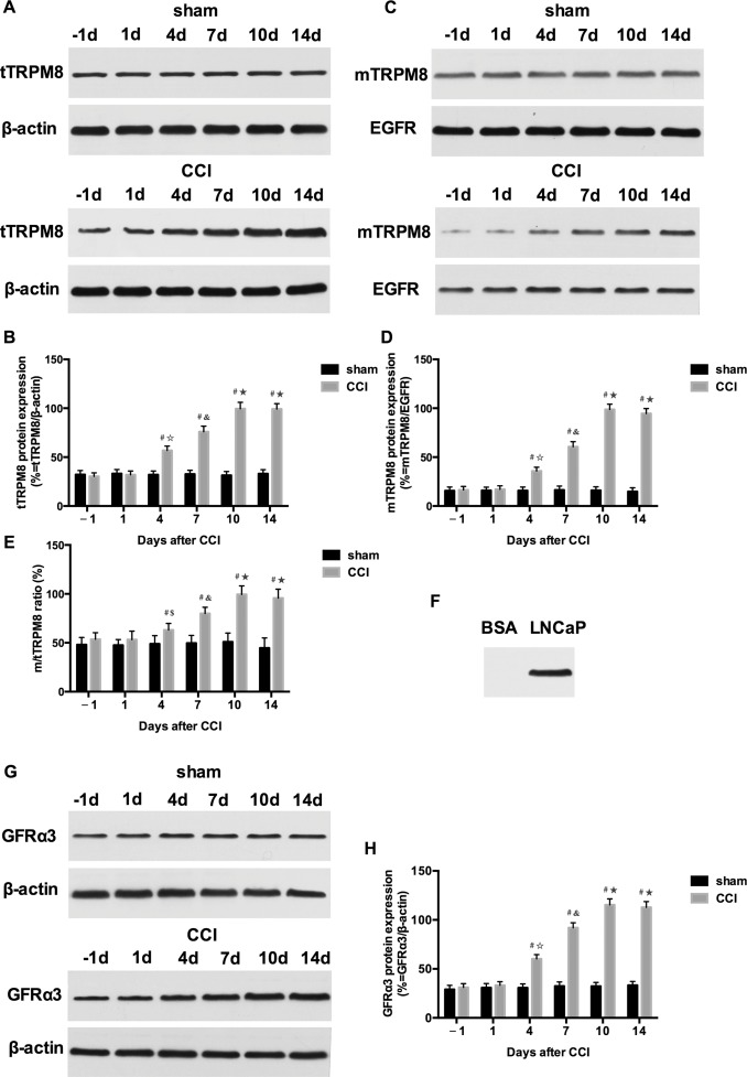 Downregulations of TRPM8 expression and membrane trafficking in