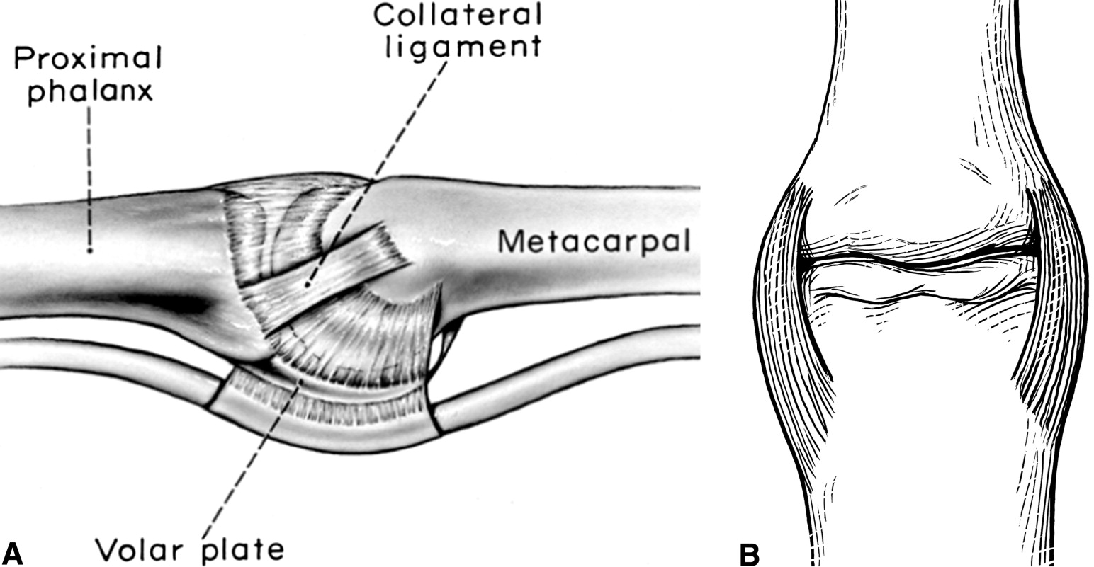 Evaluation of Collateral Ligament Injuries of the ...