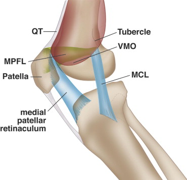 Acute Knee Dislocation: Review of an Elusive Entity - ScienceDirect