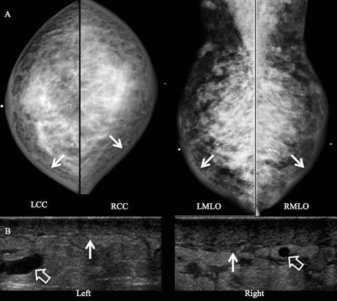 Nephrogenic systemic fibrosis fdating