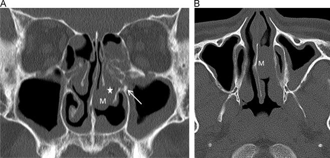 inverted nasal papilloma ct