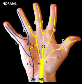 Magnetic Resonance Imaging of the Digital Nerves of the Hand ...
