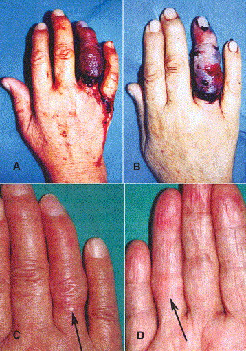 the value of medical leeches in the treatment of class iic ring