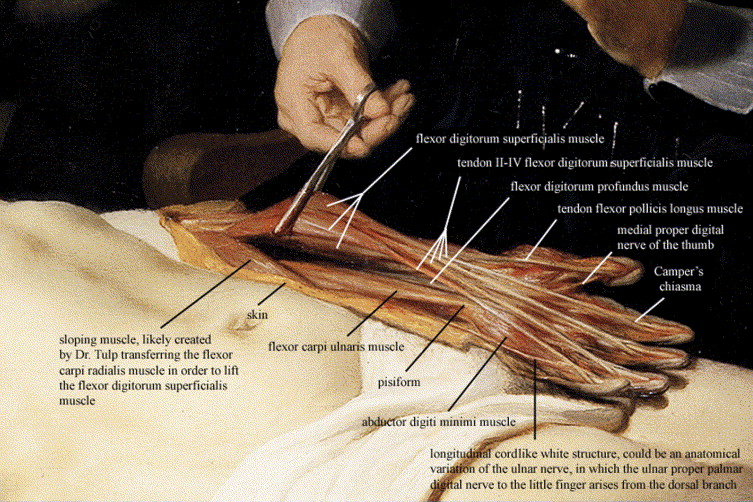 The Anatomy Lesson Of Dr Nicolaes Tulp By Rembrandt 1632 A