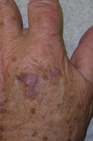 Skin Cancers Of The Hand And Upper Extremity Sciencedirect