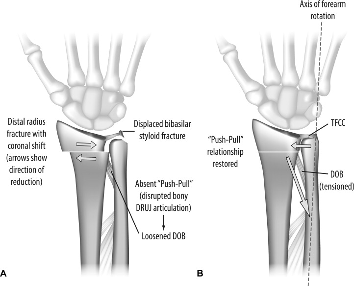 The Impact of Coronal Alignment on Distal Radioulnar Joint Stability ...
