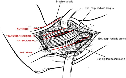 Anatomical Study of the Surgical Approaches to the Radial Tunnel ...
