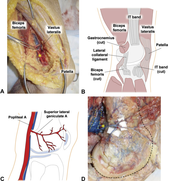 Lateral Femoral Condyle Flap: An Alternative Source of Vascularized ...