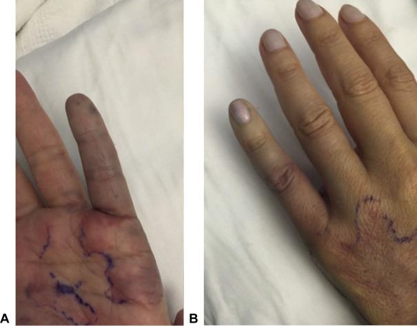 varicose veins in hands