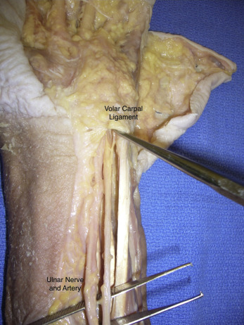 Anatomy of the Volar Retinacular Elements of the Hand: A Unified ...
