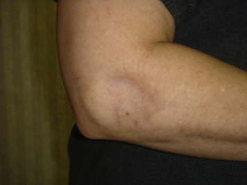 Soft Tissue Atrophy Related to Corticosteroid Injection: Review of