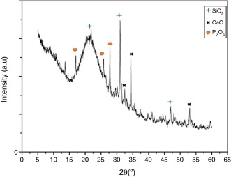 Characterization And Bioactivity Behavior Of Sol Gel Derived