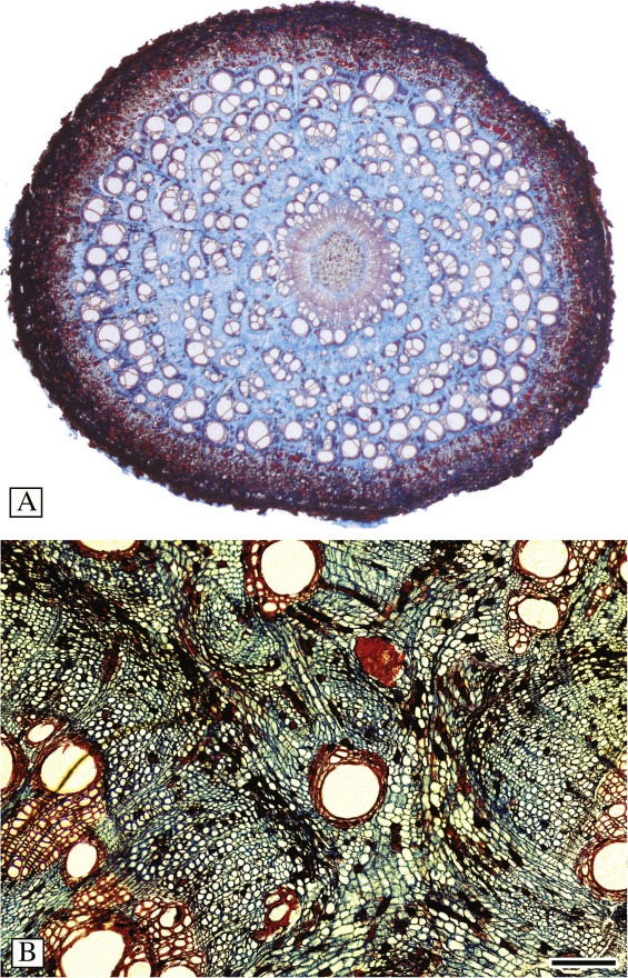 Ontogeny, structure and occurrence of interxylary cambia in ...