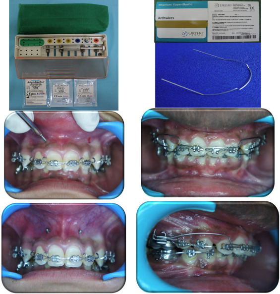 Rate of intrusion of maxillary incisors in Class II Div 1 ...