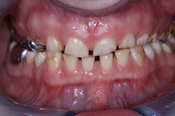 crack tooth syndrome bdj