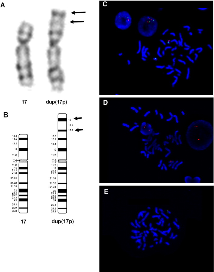 Molecular characterization of near-complete trisomy 17p syndrome
