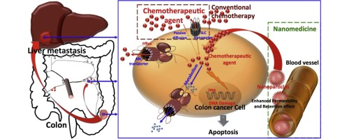 Nanotechnologies for the treatment of colon cancer: From old