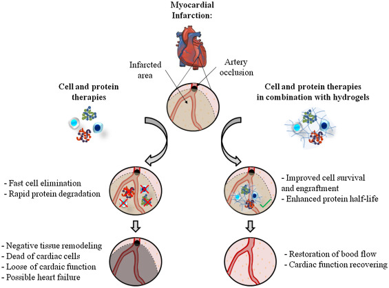 Hydrogel based approaches for cardiac tissue engineering