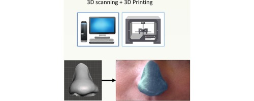 Patient-specific 3D scanned and 3D printed antimicrobial