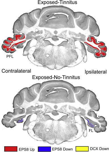 Chronic tinnitus and unipolar brush cell alterations in the