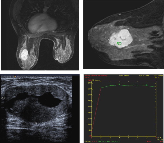 The role of MRI in assessment of asymmetrical breast densities