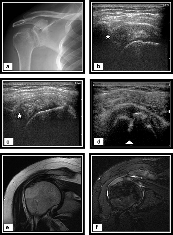 Ultrasonographic and MR diagnosis of rotator cuff disorders ...