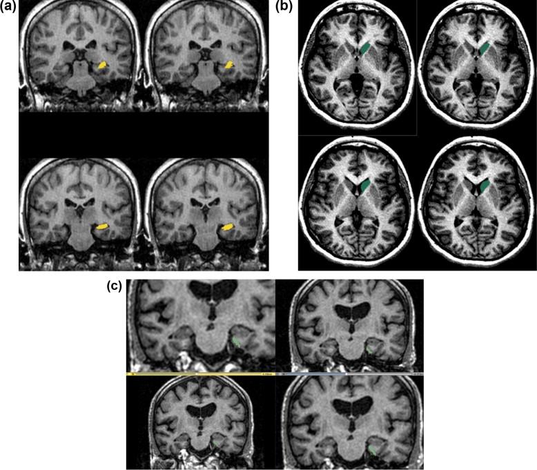 Hippocampus, caudate nucleus and entorhinal cortex volumetric MRI ...
