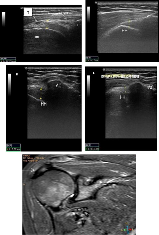 Value Of Dynamic Sonography In The Management Of Shoulder Pain In