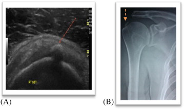 The role of ultrasound guided percutaneous needle aspiration