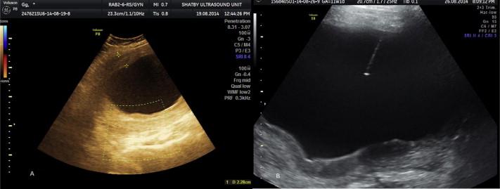 A Giant Uterine Myometrium Cyst Mimicking An Ovarian Cyst In